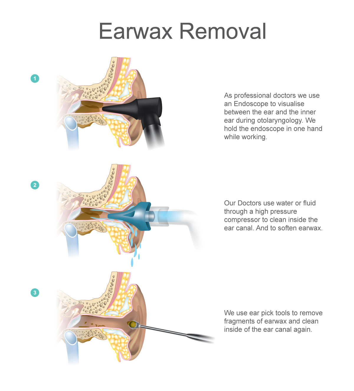 Earwax Removal Diagram